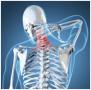 Kaip atpažinti galvos, kaklo ir nugaros sužalojimus